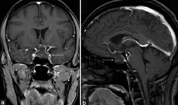 The Role of Magnetic Resonance Imaging (MRI) in Diagnoses of Pituitary Gland